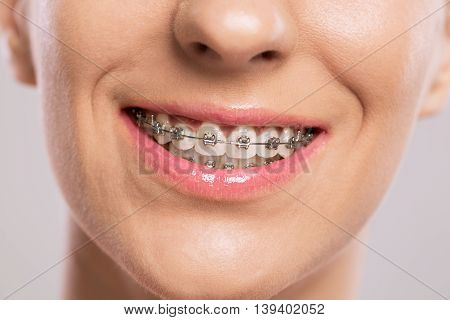 Healthy smile girl with braces, close up