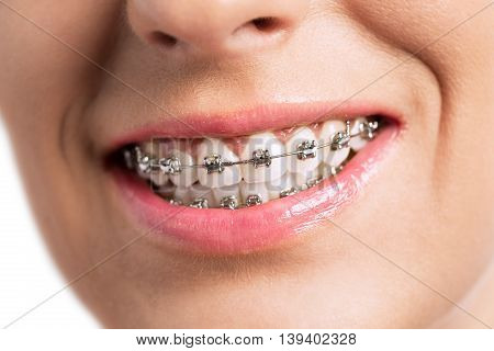 Prety young girl smiling with braces, close up