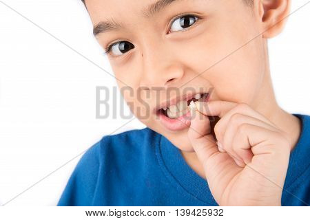 Little boy showing baby teeth toothless close up waiting for new teeth