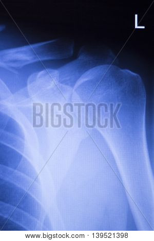 Shoulder Joint Orthopedic Xray Scan