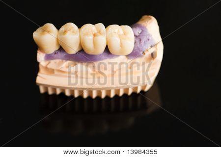 Dental Bridge Made Of Porcelain On Casting