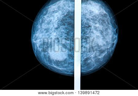 mammography breast scan X-ray image: medical concepts