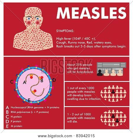vector measles infographic