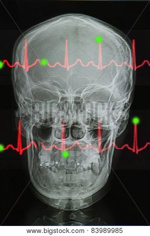 Skull X-rays Image And Lifeline Of Electrocardiogram