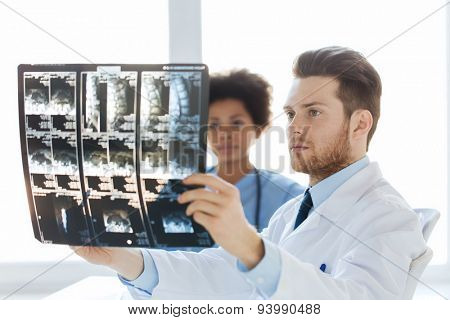 radiology, surgery, health care, people and medicine concept - doctor and nurse looking at x-ray image of spine at hospital