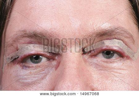 Eyes After Eyelid Surgery