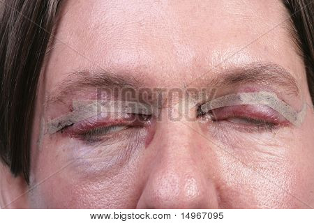Plastic Surgery On Eyes