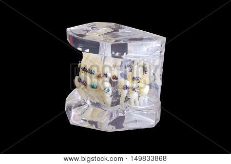 Model Of Human Jaw With Wire Braces Attacheg Isolated On Black Background With Clipping Path