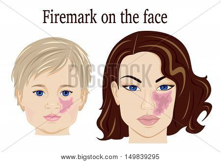 Port-wine stain on the face of the child and adult
