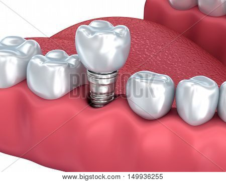 Dental implant Close-up . 3D rendering,over white
