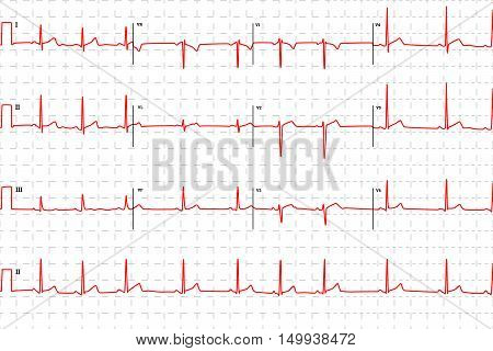 Typical human electrocardiogram red graph with marks on white