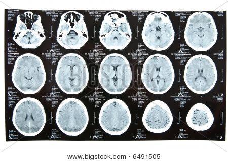 Human Brain Xray Image