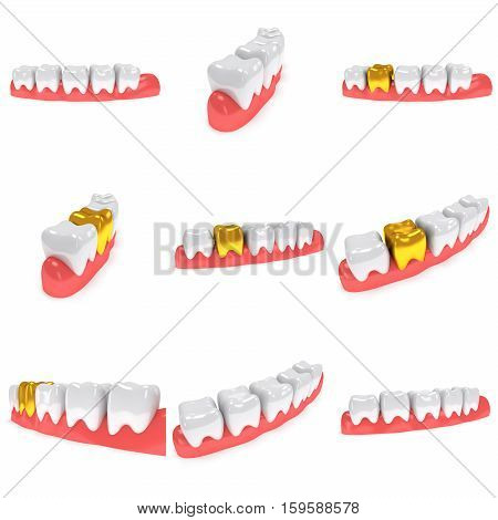 Teeth on gingiva isolated on white background set. 3D render. Dental, medicine, health concept.