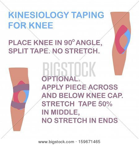 Kinesiology taping for knee. No stretch tape. Vector illustration.
