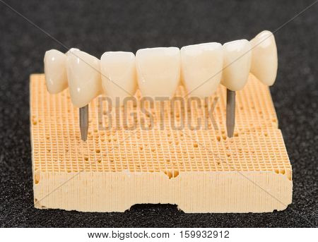 Crown seven elements on zirconium oxide, detail of the layering ceramic dental implant.