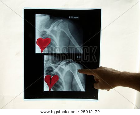a x-ray shows before and after a Broken Heart
