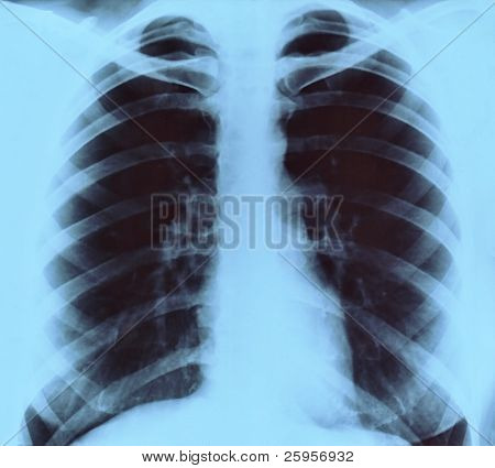 Chest frontal x-ray image for medical diagnosis