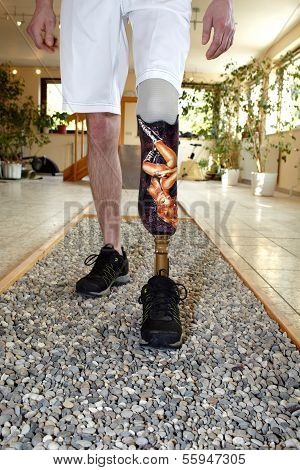 Male Prosthesis Wearer Learning To Walk