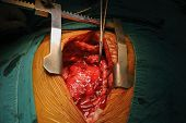 picture of spreader  - cardiac tumor median sternotomy spreader operating room - JPG
