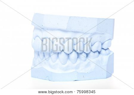 Plaster cast of teeth. All on white background.