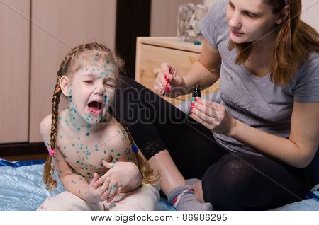 Girl Suffering From Chicken Pox Crying When My Mother Misses Sores Zelenkoj