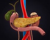 image of gallbladder surgery  - Pancreas - JPG