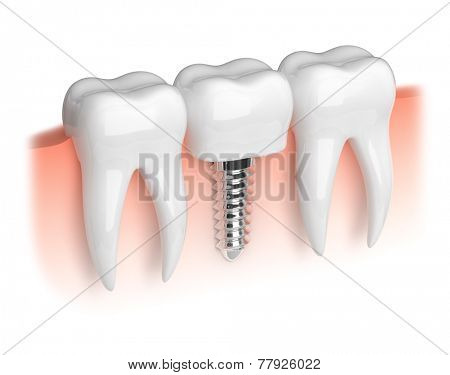 Model of white teeth and dental implant
