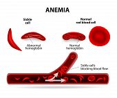 stock photo of hemoglobin  - anemia - JPG