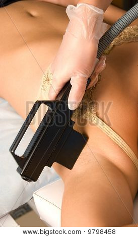 Armpit Laser Epilation