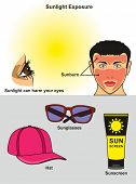 Sunlight Exposure infographic diagram showing how it harm human eye and face with sunburn also how t poster