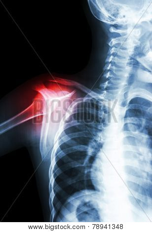 arthritis at shoulder