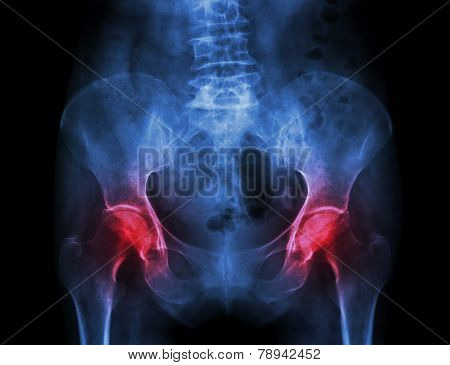 Film X-ray Pelvis Of Osteoporosis Patient