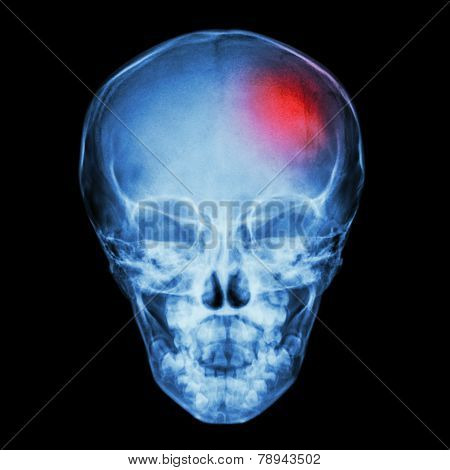 X-ray Skull of child and Stroke (cerebrovascular accident)