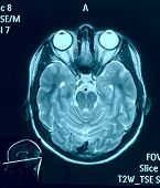 foto of mri  - Real brain MRI slide of a young woman - JPG