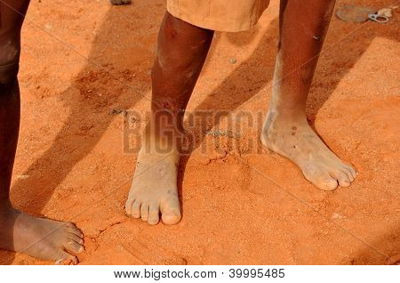 feet of a poor child