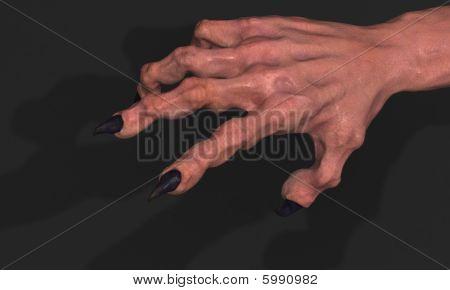 Clawed Hand