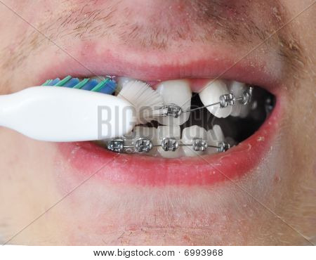 Young Adult Man Brushes Teeth
