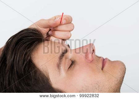 Man Receiving Acupuncture Treatment