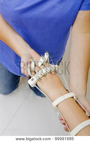 Physiotherapy for a Girl wearing a Flexing Splint
